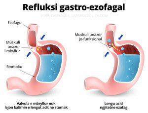 Refluksi gastro-ezofagal