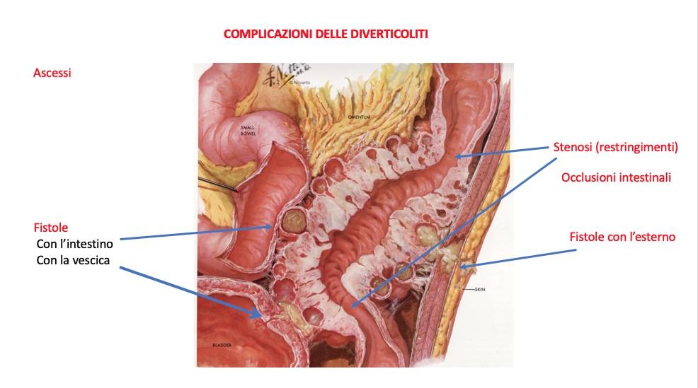 dieta per la malattia diverticolare del colon